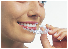 Harbrouck Heights Invisalign Dentist | clear braces, straight teeth | Robert L. Leung DDS